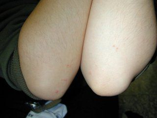Microsoft powerpoint - cutaneous fungal infections